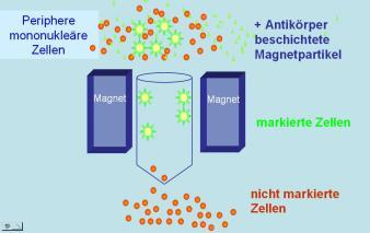 Magnet-activated cell sorting (Figure: University Clinic for Paediatrics and Youth Medicine, Tübingen)